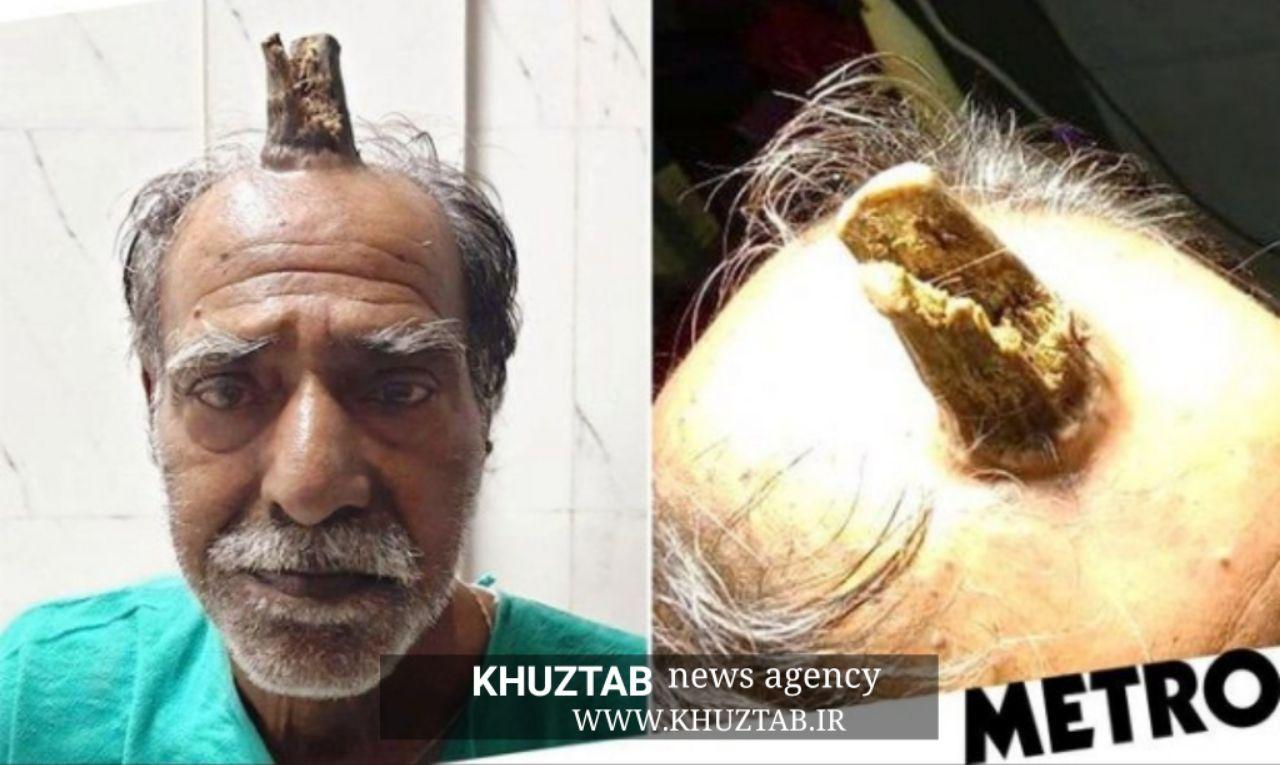 IMG 20190919 070710 947 مردی با شاخ ۱۰ سانتی در وسط سرش+عکس