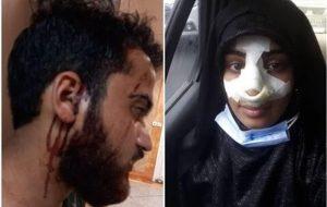 IMG 20210917 112211 670 300x190 دو نفر دیگر بعد از تذکر «کشف حجاب» کتک خوردند
