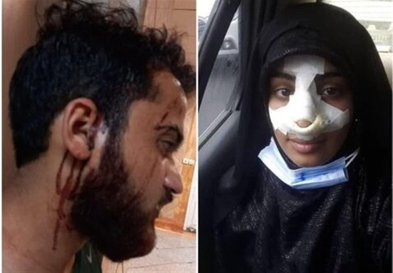 IMG 20210917 112211 670 دو نفر دیگر بعد از تذکر «کشف حجاب» کتک خوردند